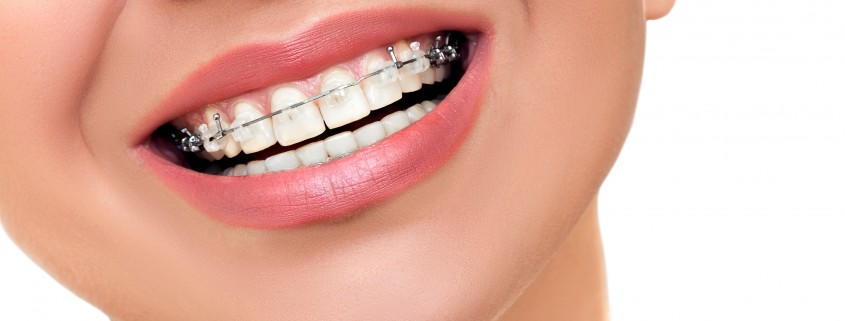 Closeup Beautiful Braces on Teeth. Orthodontic Treatment.